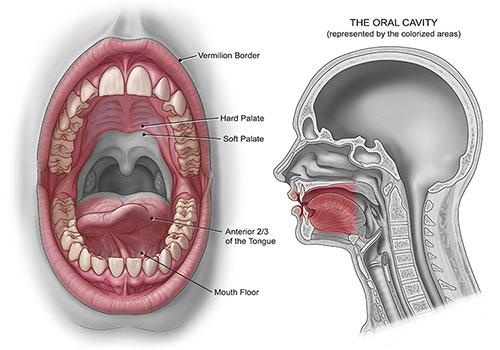 10 Dấu hiệu ung thư khoang miệng sớm nhất mà bạn cần biết