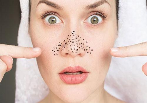 10 Kem trị mụn đầu đen ở mũi tận gốc tại nhà