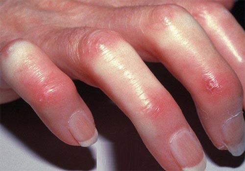 12 Bệnh ngoài da hiếm gặp nhưng nguy hiểm