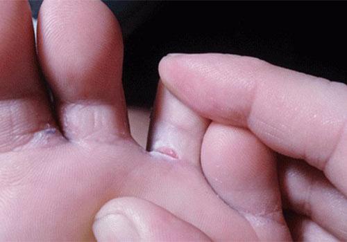 4 Trị nấm kẽ chân tại nhà đơn giản hiệu quả