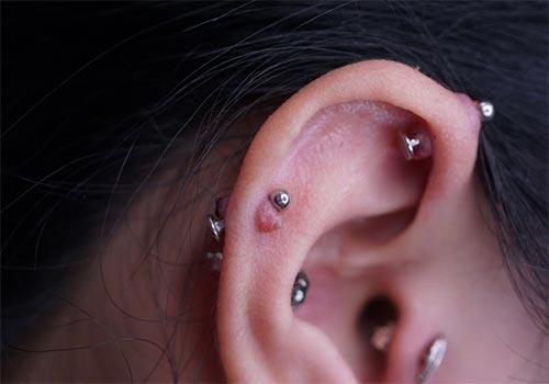 Bấm lỗ tai bị sẹo lồi hết được không?
