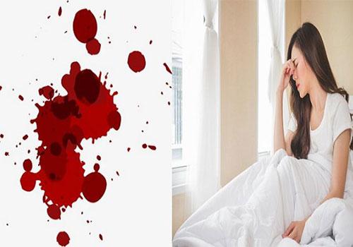 Băng kinh: Là gì, Nguyên nhân, Triệu chứng và Thuốc trị