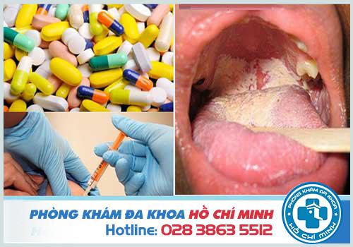 Bệnh lậu ở miệng: Nguyên nhân Dấu hiệu và Cách chữa trị hiệu quả