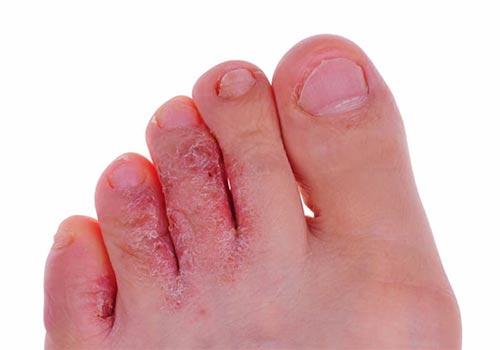 Bệnh nấm kẽ chân là gì? Nguyên nhân và cách chữa trị tại nhà