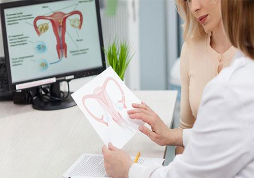Bệnh u xơ tử cung là gì? Nguyên nhân, dấu hiệu và cách điều trị