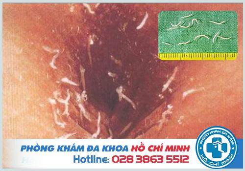 Bị ngứa hậu môn vào ban đêm có thể là do nhiễm giun kim