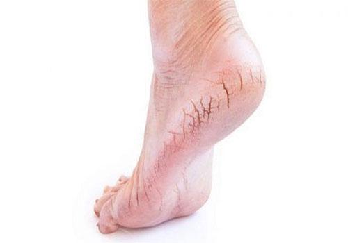 Bị nứt gót chân là thiếu chất gì?