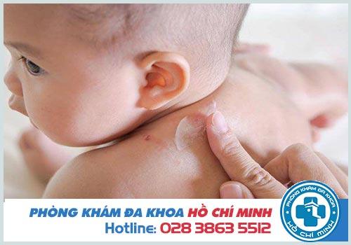 Cách điều trị viêm da mủ ở trẻ sơ sinh
