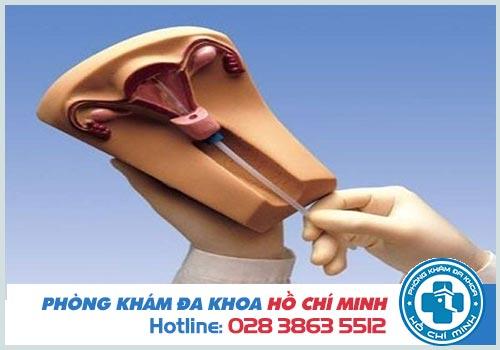 Cách kiểm tra vòng tránh thai tại nhà