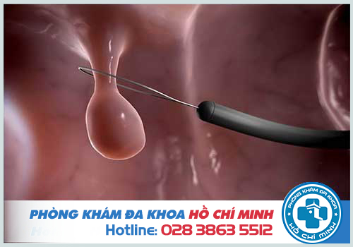 Cắt polyp cổ tử cung có nguy hiểm không? Có đau không