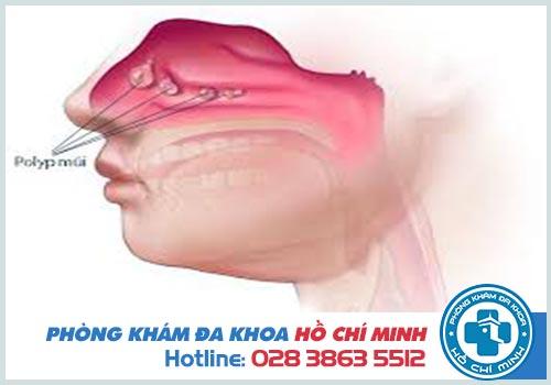 Cắt polyp mũi có nguy hiểm không?