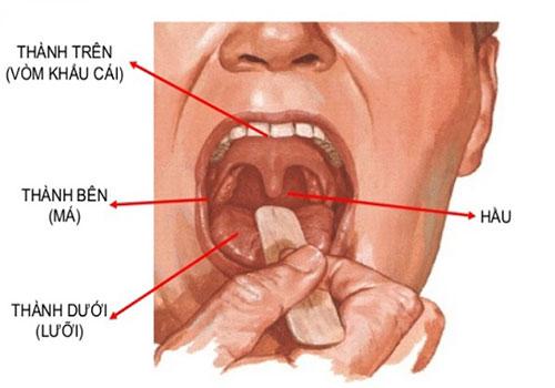 Cấu tạo khoang miệng và Các bệnh về khoang miệng hay gặp