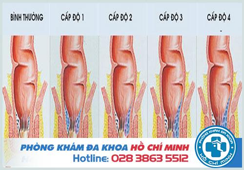 Hiệu quả khi cắt trĩ bằng phương pháp HCPT tại phòng khám Đa khoa TPHCM