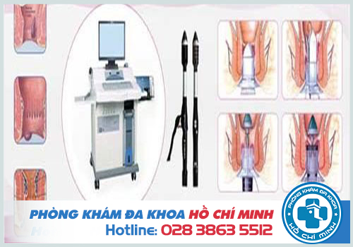 Quy trình cắt trĩ bằng HCPT tại phòng khám Đa khoa TPHCM