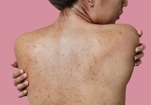 Da lưng bị khô có sao không? Cách chữa trị