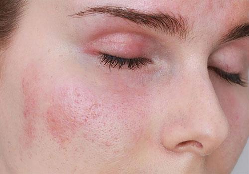 Da mặt bị ngứa và sần sùi là bị gì Cách chữa trị