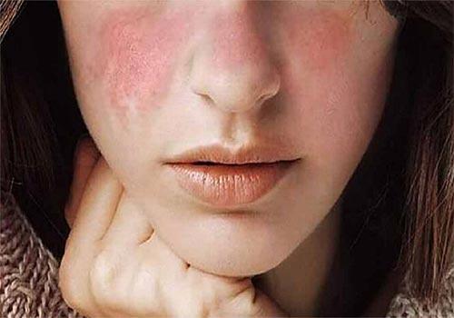 Da mặt khô ngứa mẩn đỏ bong tróc phải làm sao?