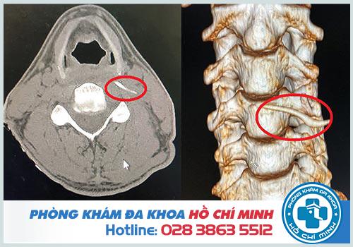 Địa chỉ gắp xương cá ở TPHCM không đau chi phí thấp