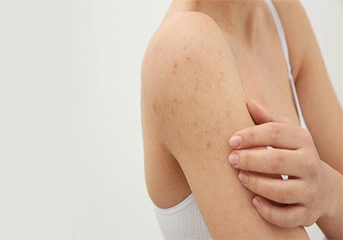 Điều trị viêm nang lông bằng laser bao nhiêu tiền?