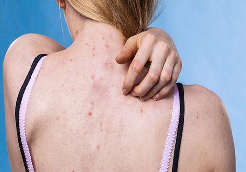 Điều trị viêm nang lông ở đâu uy tín tốt nhất?