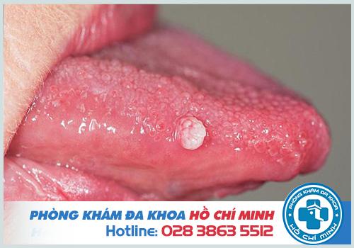 Hình ảnh bệnh sùi mào gà ở lưỡi và cuống lưỡi giai đoạn đầu