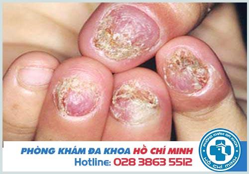 Hình ảnh nấm móng tay móng chân chi tiết nhất