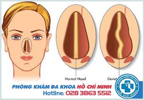 Hình ảnh vẹo vách ngăn mũi