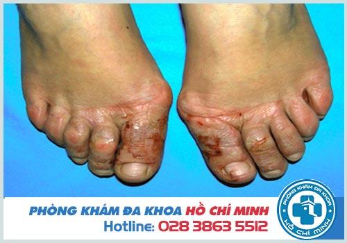 Hình ảnh viêm da tiếp xúc ở người lớn và trẻ em
