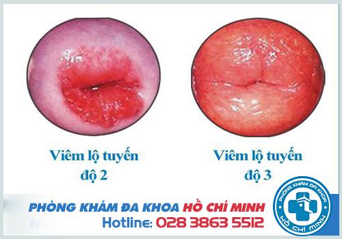 Hình ảnh viêm lộ tuyến cổ tử cung giai đoạn 4