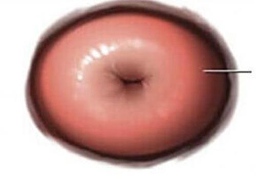 Hình ảnh viêm lộ tuyến cổ tử cung qua từng giai đoạn
