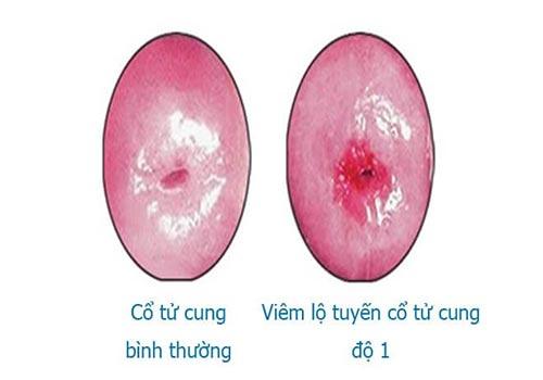 Hình ảnh viêm lộ tuyến cổ tử cung qua từng giai đoạn chi tiết