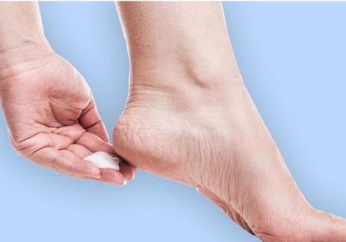 Kem trị nứt gót chân vaseline có hiệu quả không?