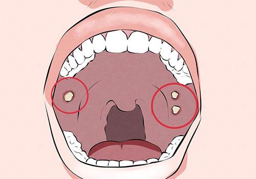 Khám ung thư khoang miệng ở đâu TPHCM?