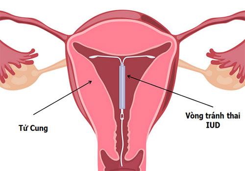 Kiểm tra vòng tránh thai bằng cách nào tại nhà?