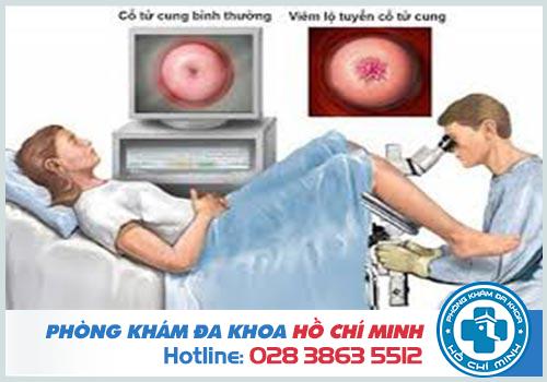 Kinh nghiệm đốt viêm lộ tuyến cổ tử cung