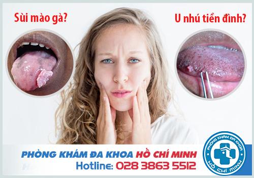 Lưỡi nổi mụn thịt không đau là bị gì? Cách chữa trị tại nhà hiệu quả
