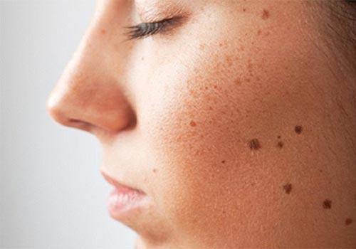 Mụn ruồi là gì? Cách chữa mụn ruồi tại nhà