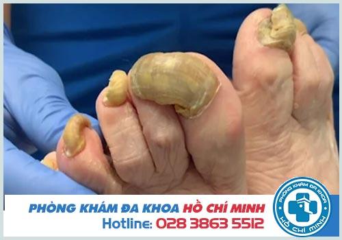 Nấm móng chân có nguy hiểm không? Tác hại gì?