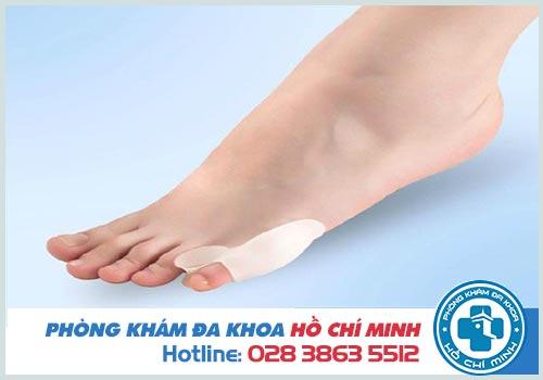 Ngón chân út bị sưng đau là bị gì? Cách chữa trị