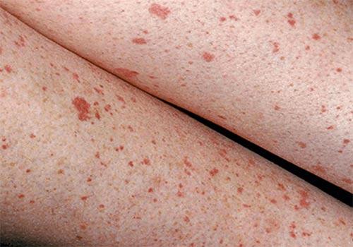 Nổi chấm đỏ dưới da ở chân không ngứa là bị gì? Cách trị