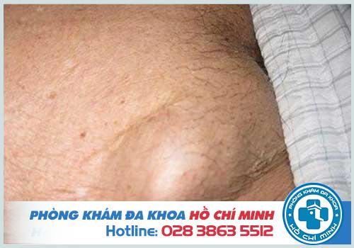 Nổi mụn cứng ở vùng lông mu là bệnh gì? Cách chữa trị tại nhà hiệu quả