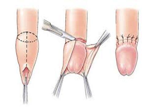 Nổi mẩn đỏ ngứa ở háng nam giới là bị gì? Cách chữa trị
