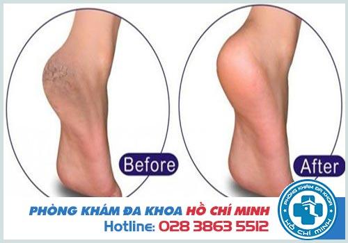 Nứt gót chân Nguyên nhân và Cách điều trị
