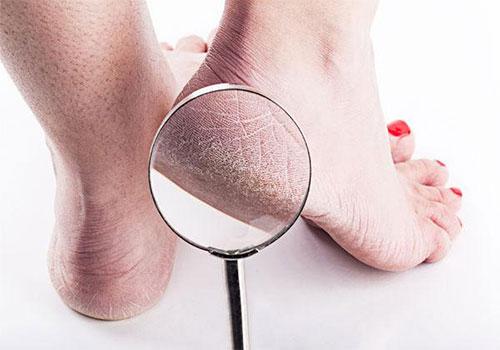 Nứt gót chân: Nguyên nhân và Cách điều trị