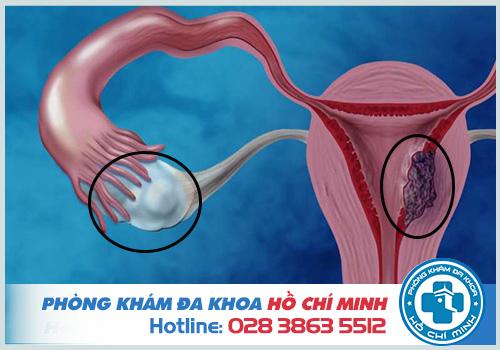Ra khí hư màu hồng trước kỳ kinh nguyệt có thể là u xơ tử cung, u nang buồng trứng