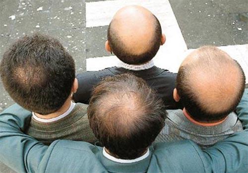 Rụng tóc ở đỉnh đầu nam thành niên trị như thế nào?