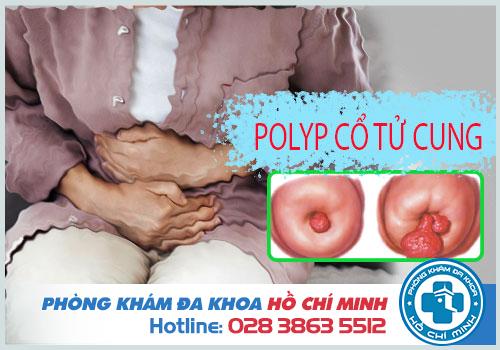 Sau khi cắt polyp cổ tử cung cần chú ý những gì