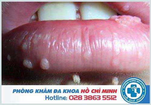 Sùi mào gà ở miệng lưỡi có lây không và cách chữa trị