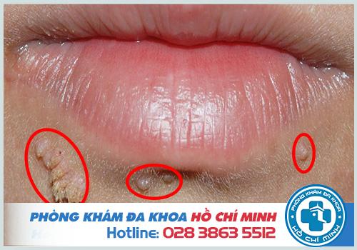 Sùi mào gà ở miệng: Triệu chứng Hình ảnh và Cách điều trị tại nhà