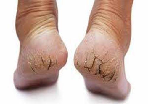Tại sao gót chân bị khô cứng nứt nẻ?
